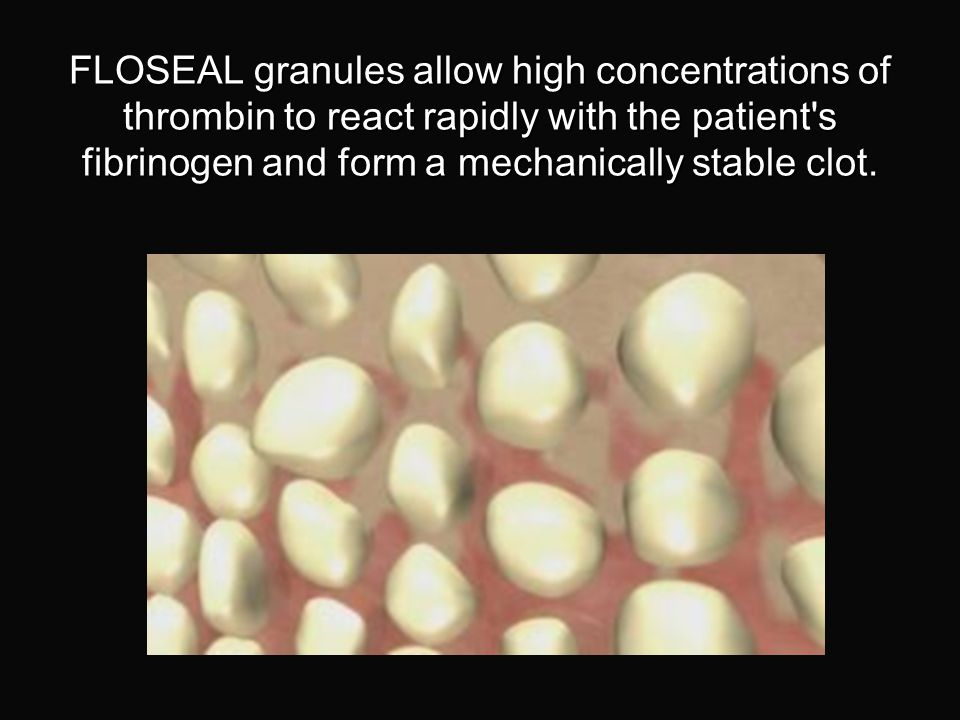 FLOSEAL granules allow high concentrations of thrombin to react rapidly with the patient s fibrinogen and form a mechanically stable clot.