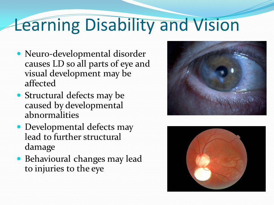 Learning Disability and Vision
