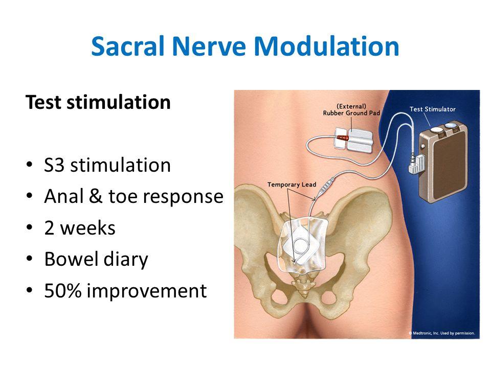 Sacral Nerve Modulation