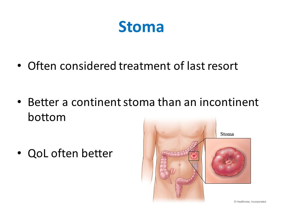 Stoma Often considered treatment of last resort