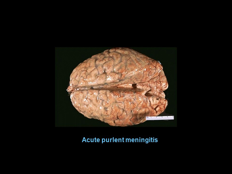 Acute purlent meningitis