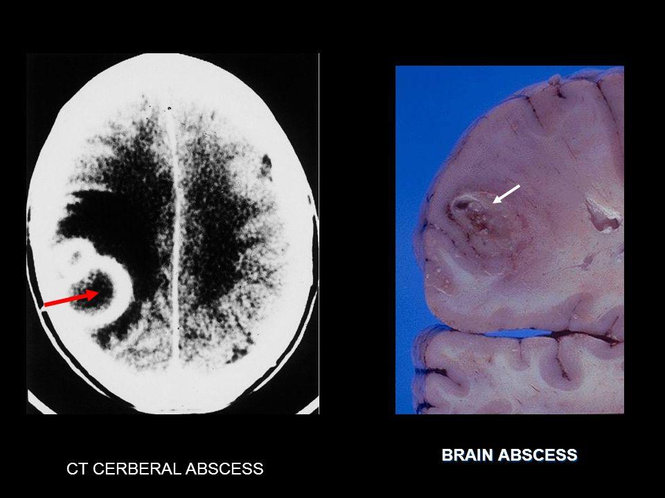 BRAIN ABSCESS CT CERBERAL ABSCESS