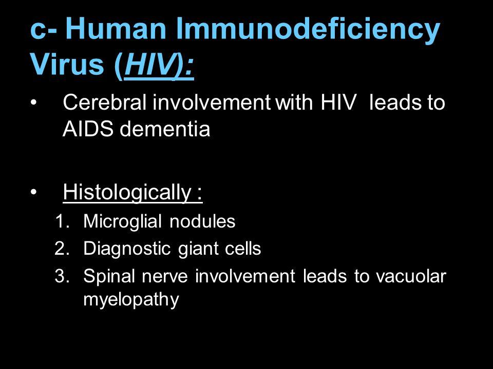 c- Human Immunodeficiency Virus (HIV):