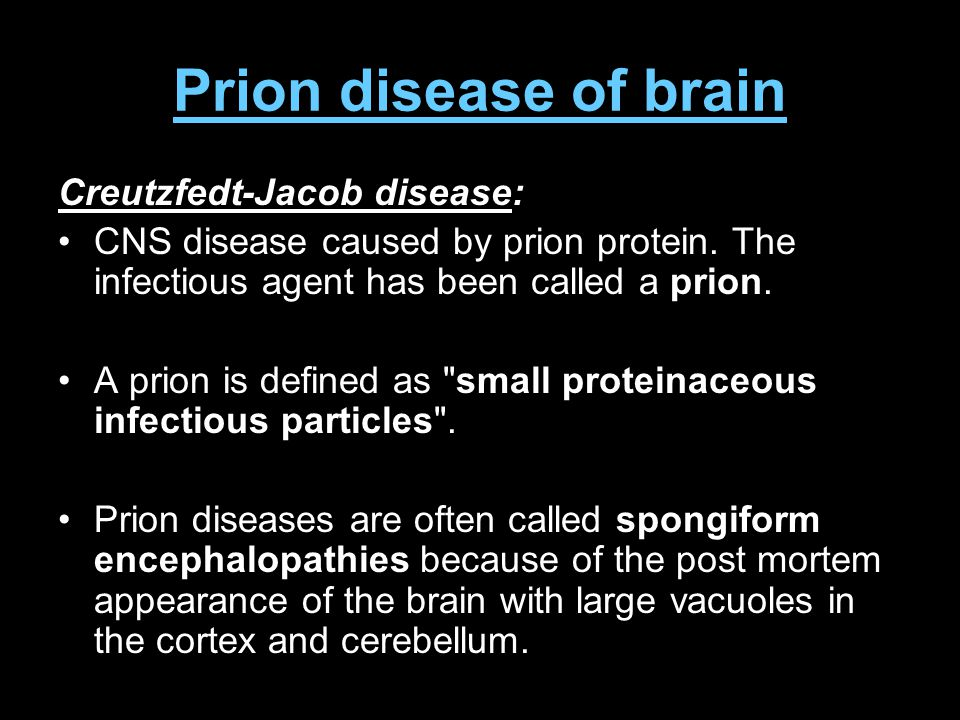 Prion disease of brain Creutzfedt-Jacob disease: