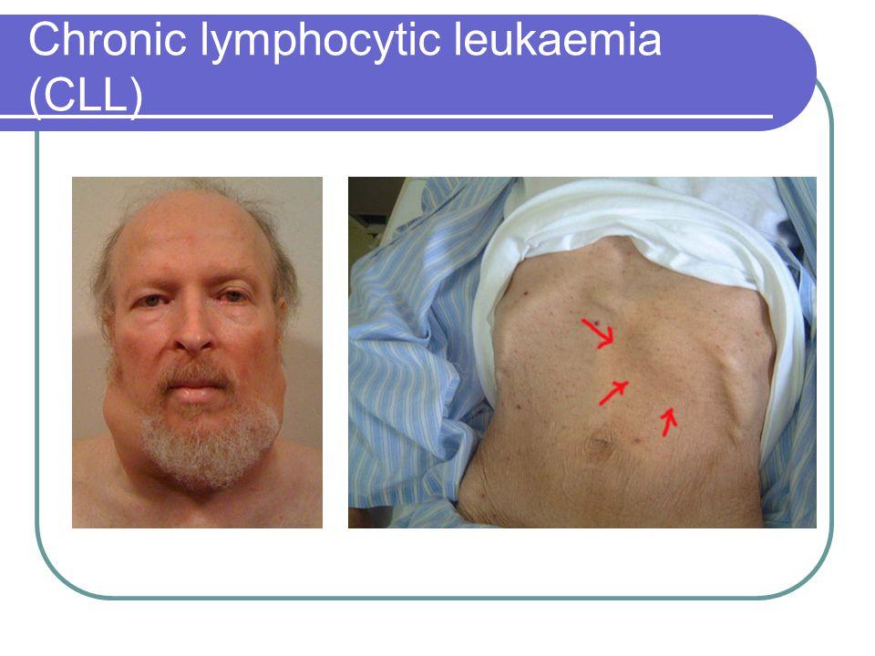 Chronic lymphocytic leukaemia (CLL)