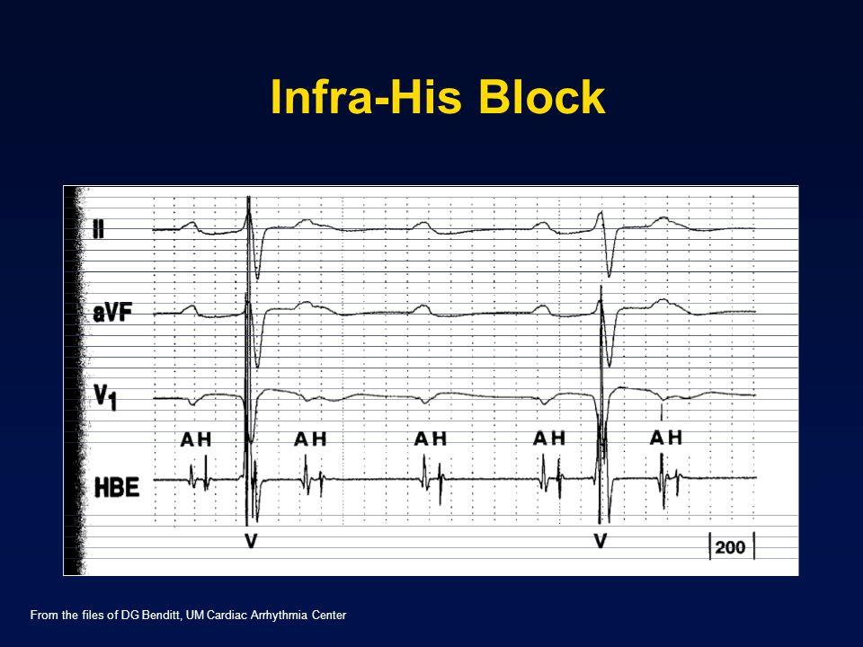 Infra-His Block