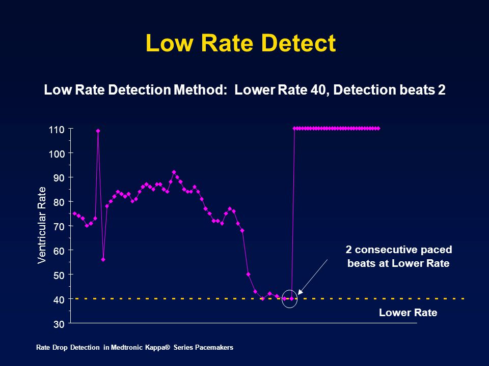 Low Rate Detect Low Rate Detection Method: Lower Rate 40, Detection beats 2. 110. 100. 90. 80.