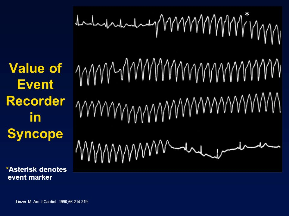 Value of Event Recorder in Syncope