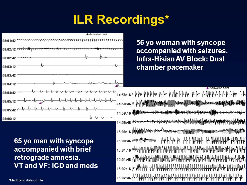 ILR Recordings* 56 yo woman with syncope accompanied with seizures.