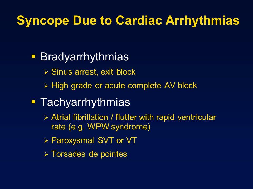 Syncope Due to Cardiac Arrhythmias