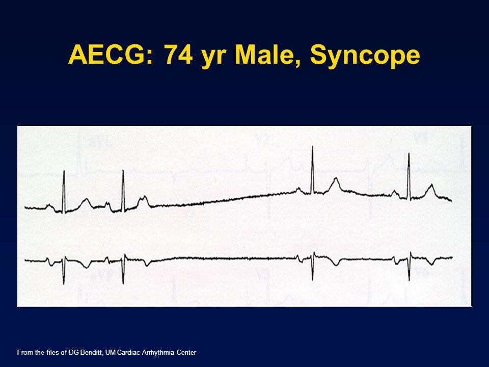 AECG: 74 yr Male, Syncope