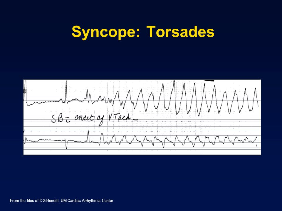 Syncope: Torsades