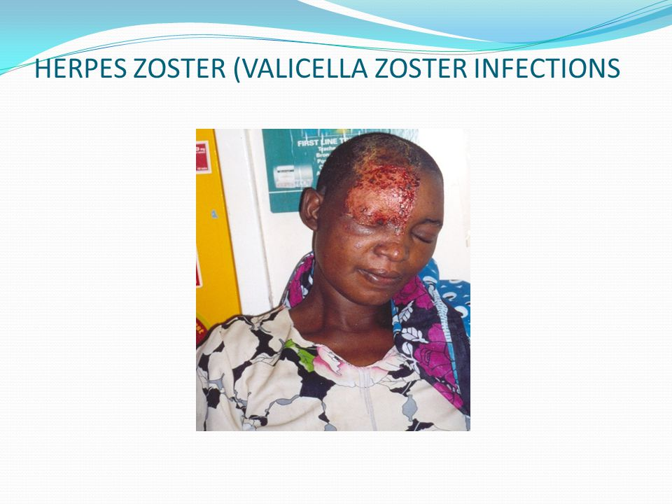HERPES ZOSTER (VALICELLA ZOSTER INFECTIONS