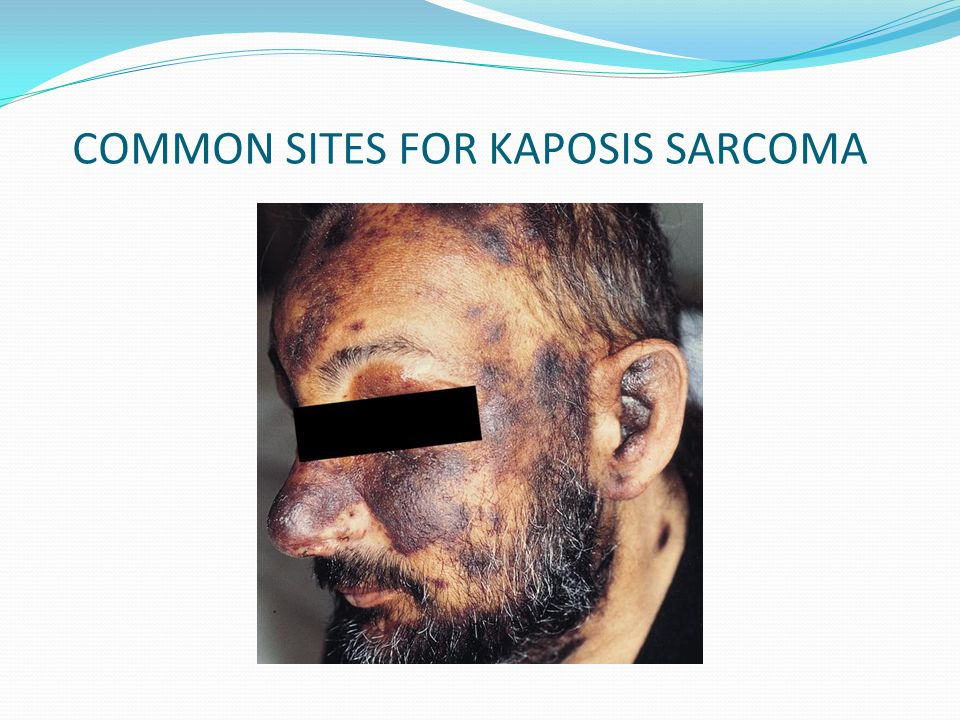 COMMON SITES FOR KAPOSIS SARCOMA