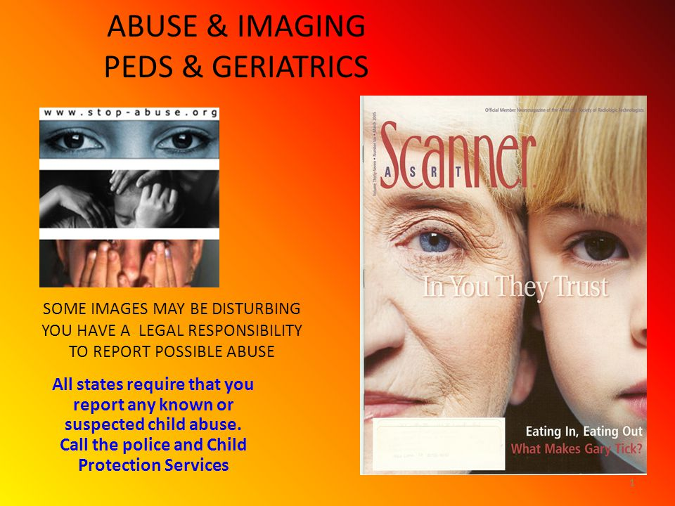 ABUSE & IMAGING PEDS & GERIATRICS