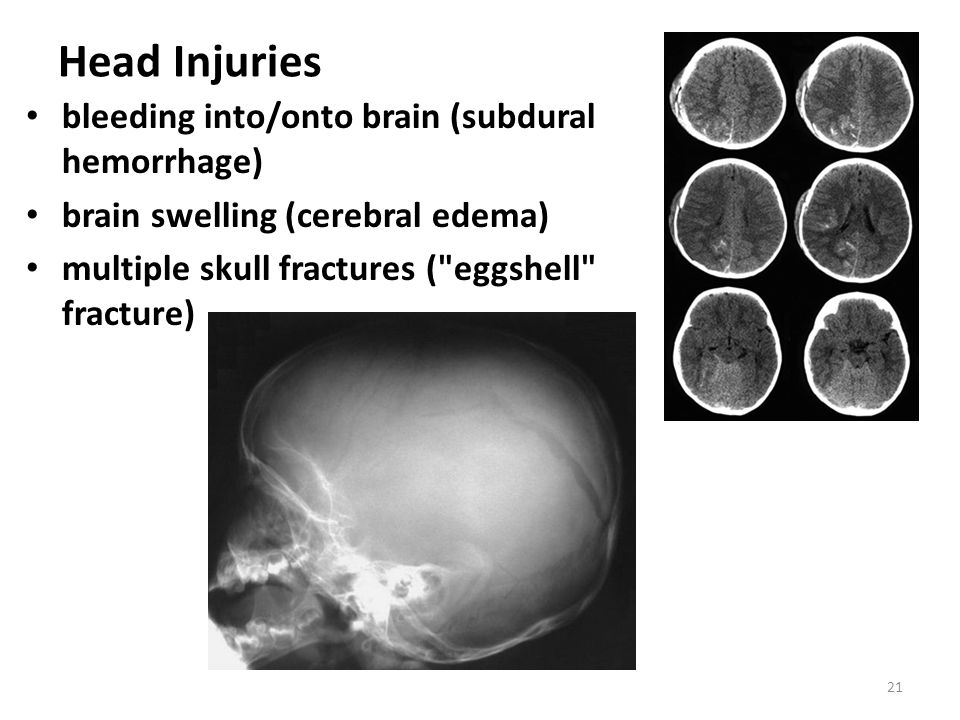 Head Injuries bleeding into/onto brain (subdural hemorrhage)