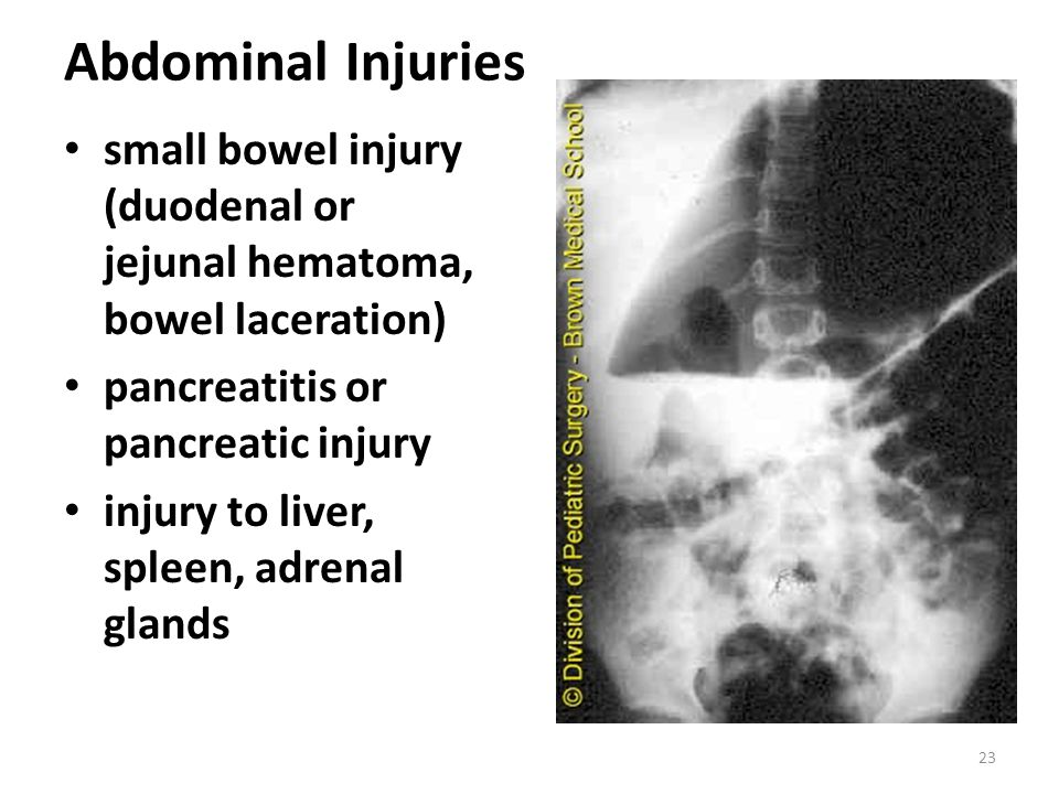 Abdominal Injuries small bowel injury (duodenal or jejunal hematoma, bowel laceration) pancreatitis or pancreatic injury.