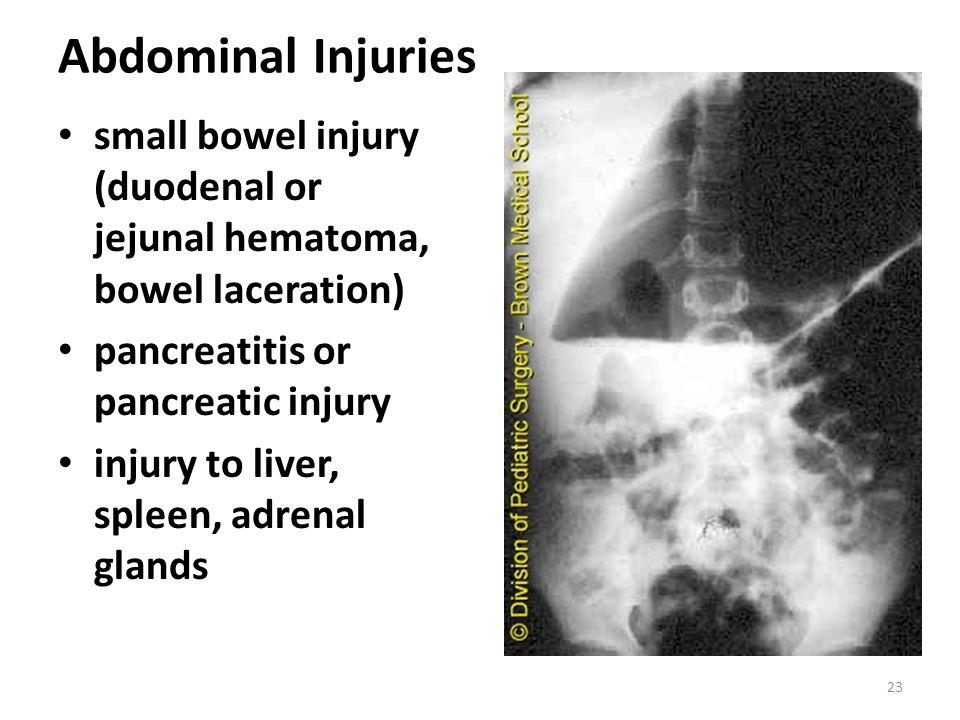 Abdominal Injuries small bowel injury (duodenal or jejunal hematoma, bowel laceration) pancreatitis or pancreatic injury.