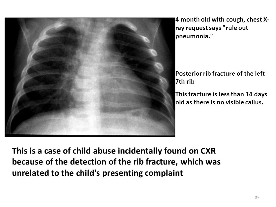 4 month old with cough, chest X-ray request says rule out pneumonia.