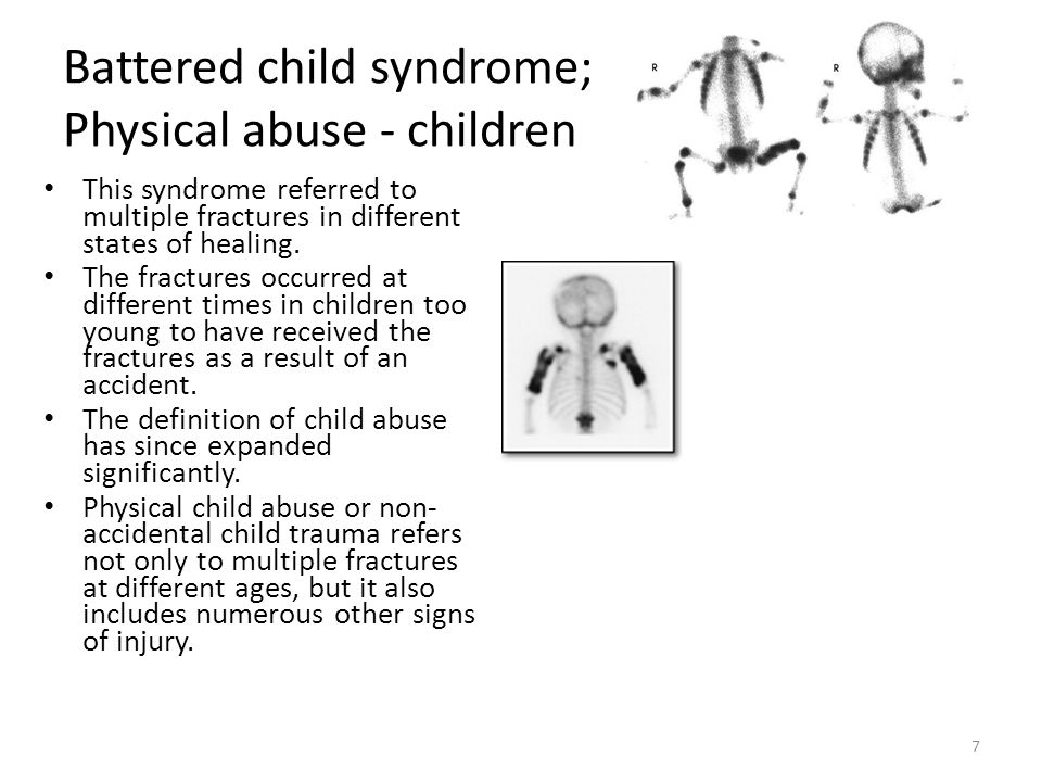 Battered child syndrome; Physical abuse - children