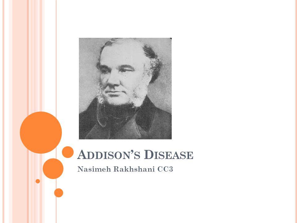Addison's Disease Nasimeh Rakhshani CC3