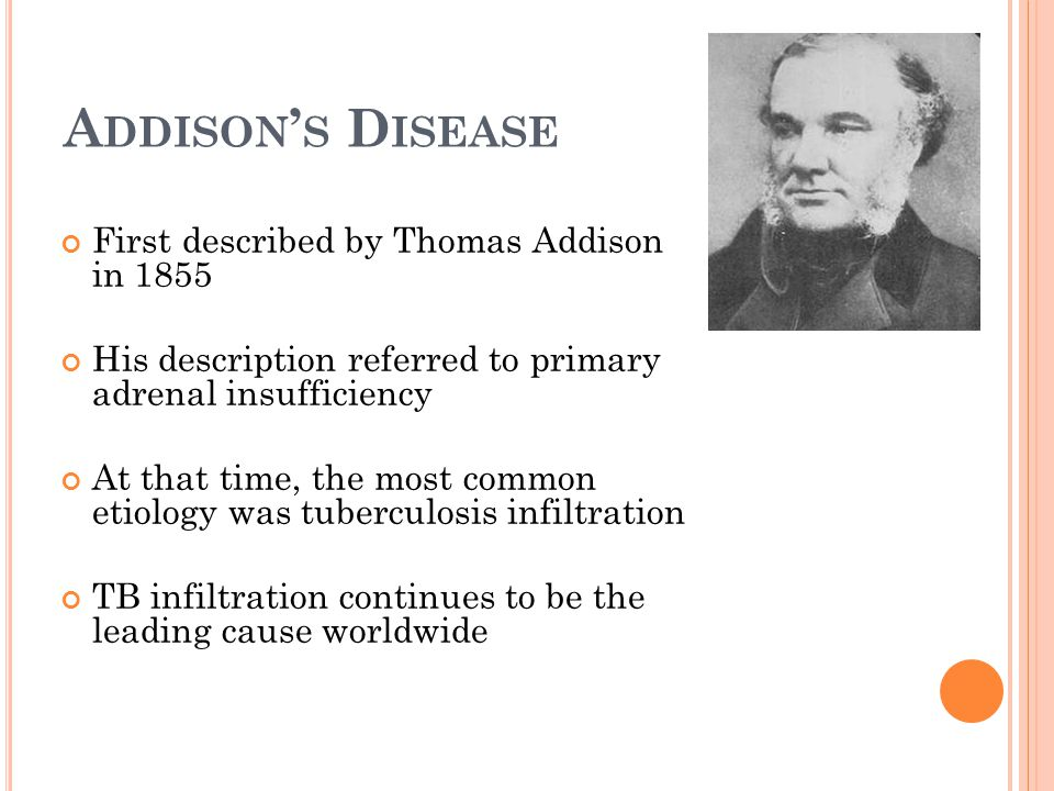 Addison's Disease First described by Thomas Addison in 1855