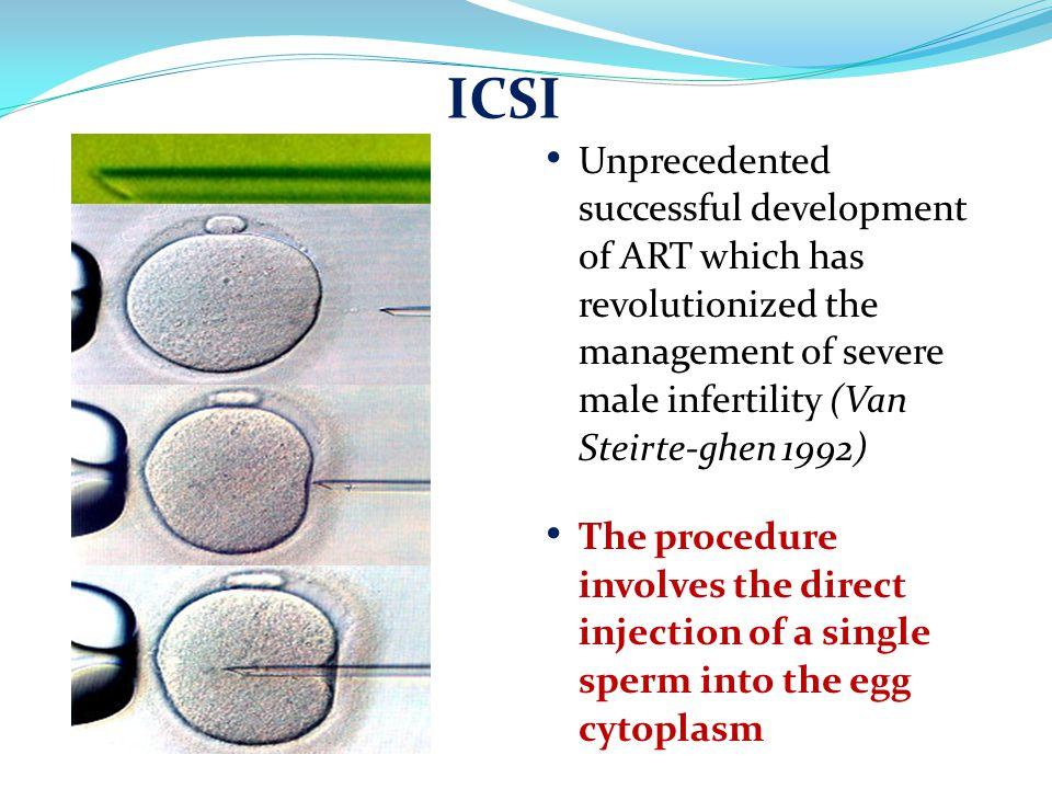 ICSI Unprecedented successful development of ART which has revolutionized the management of severe male infertility (Van Steirte-ghen 1992)