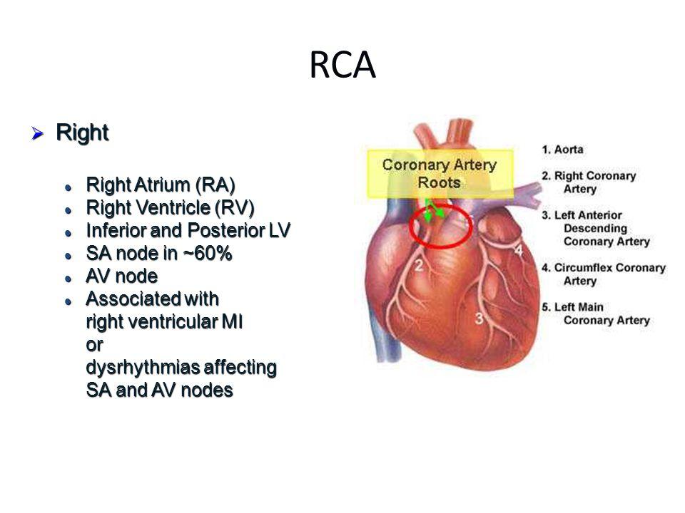 RCA Right Right Atrium (RA) Right Ventricle (RV)