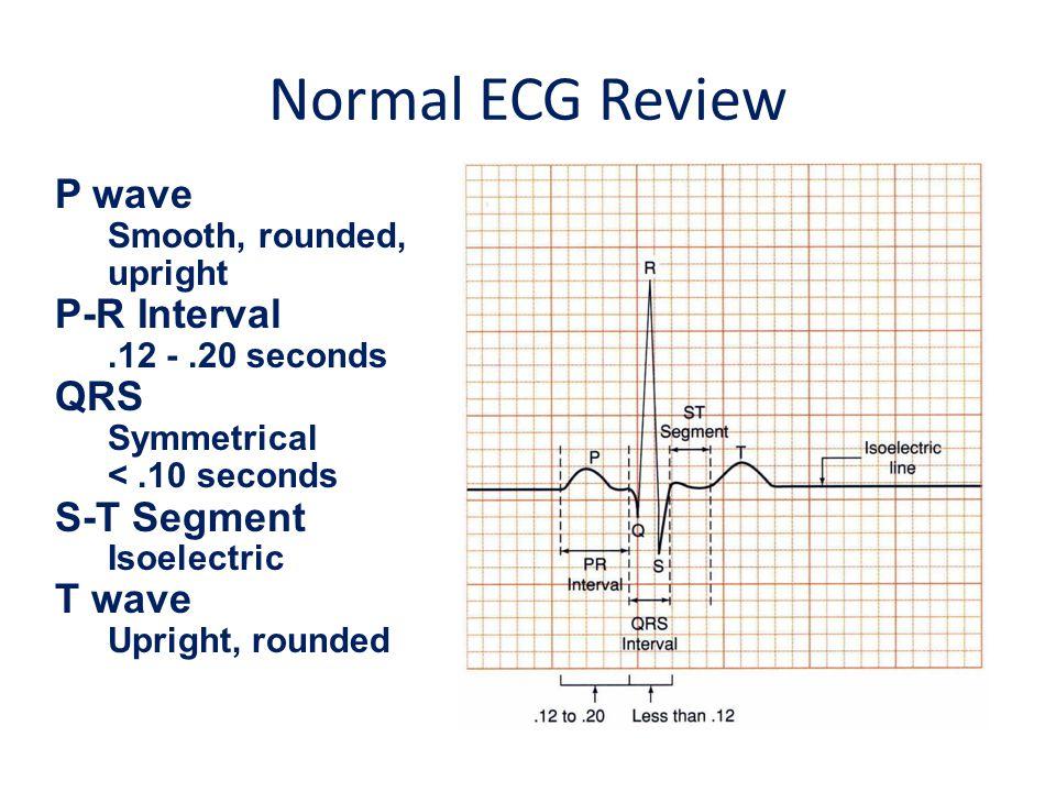Normal ECG Review P wave P-R Interval QRS S-T Segment T wave