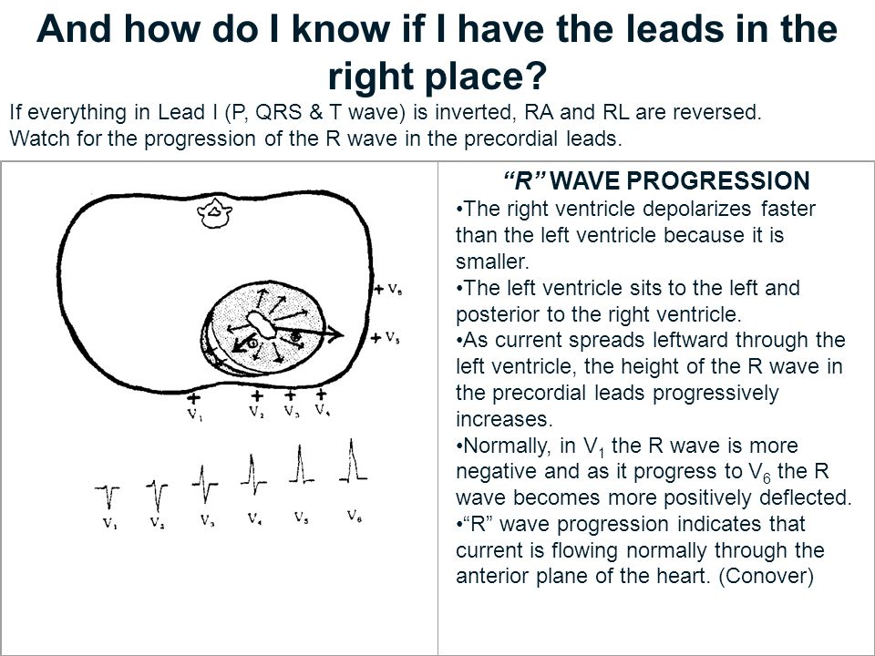 And how do I know if I have the leads in the right place