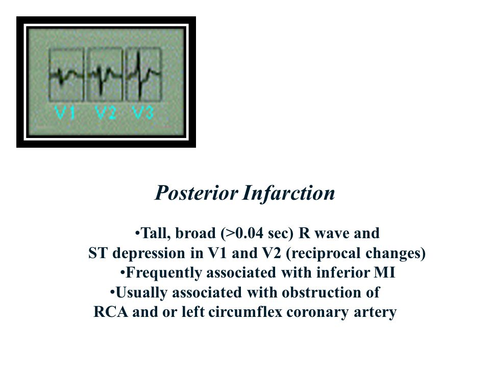 Posterior Infarction Tall, broad (>0.04 sec) R wave and