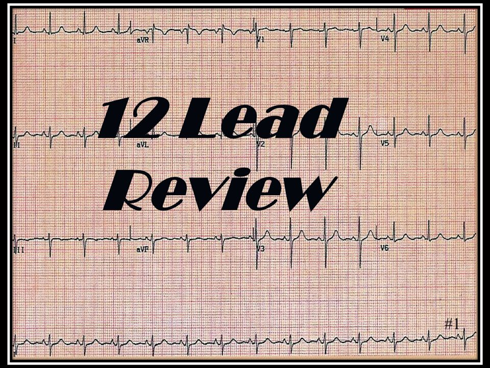 12 Lead Review #1