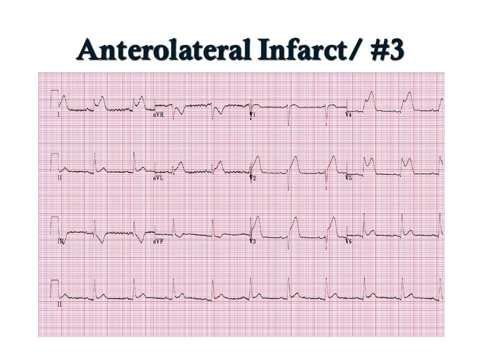 Anterolateral Infarct/ #3