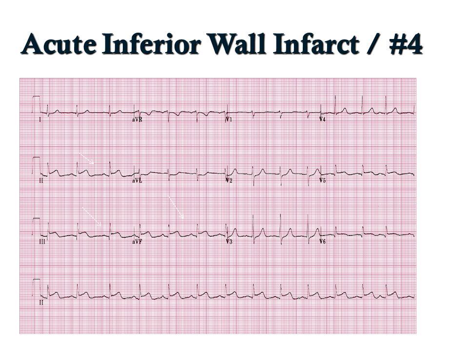 Acute Inferior Wall Infarct / #4