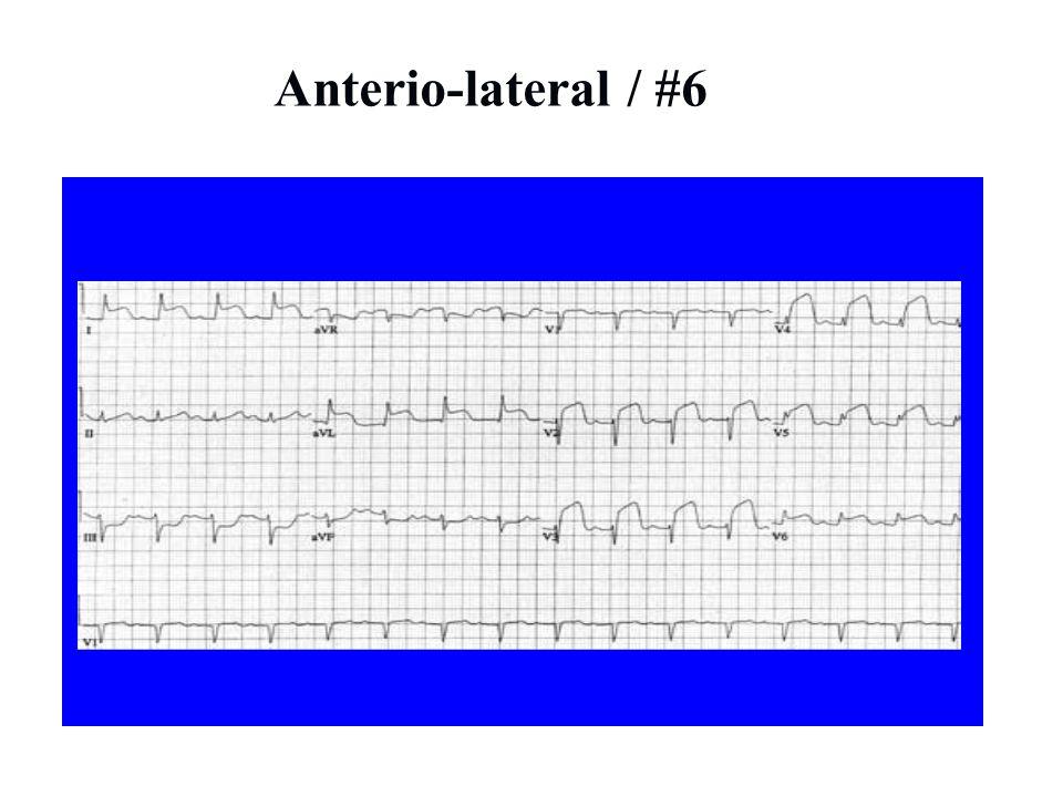Anterio-lateral / #6