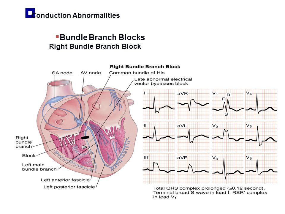 Bundle Branch Blocks Conduction Abnormalities