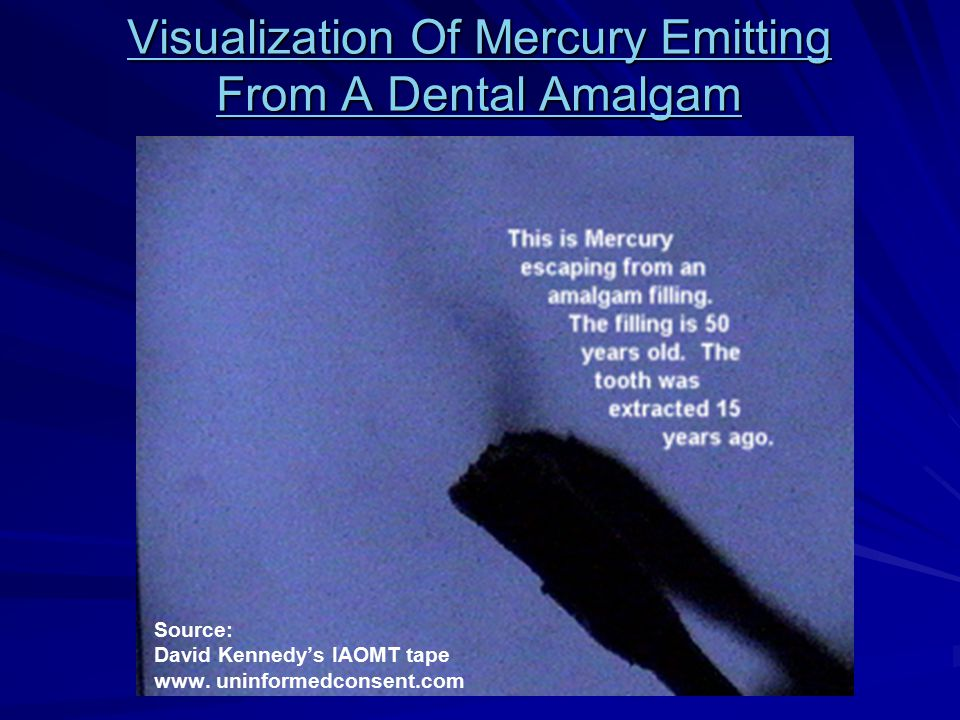 Visualization Of Mercury Emitting From A Dental Amalgam
