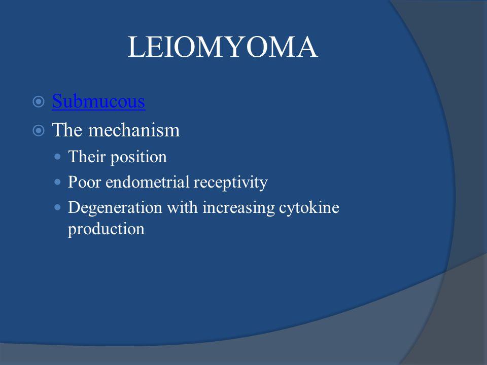 LEIOMYOMA Submucous The mechanism Their position
