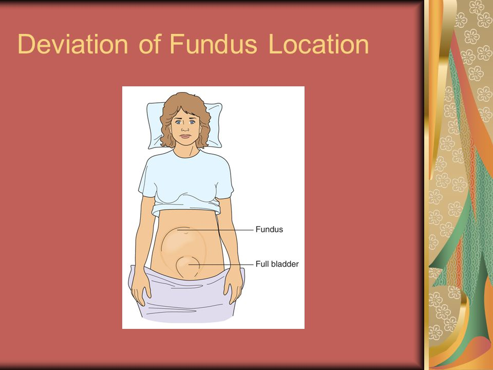 Deviation of Fundus Location
