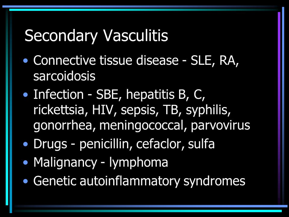 Secondary Vasculitis Connective tissue disease - SLE, RA, sarcoidosis
