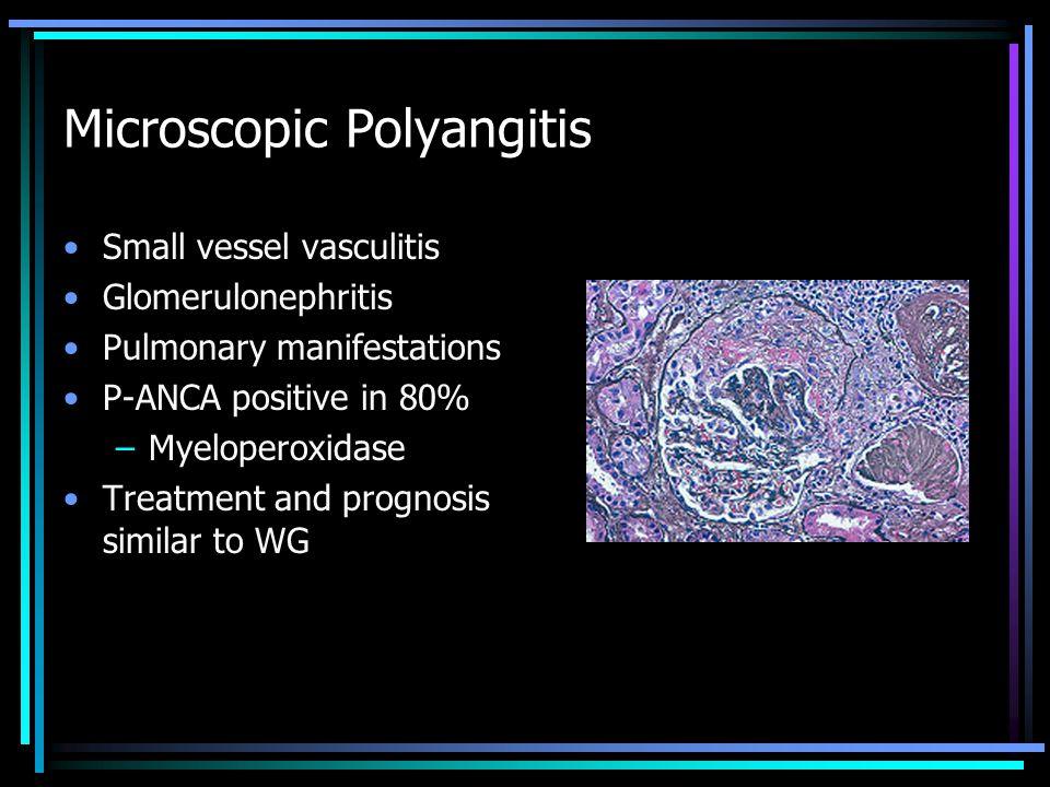 Microscopic Polyangitis
