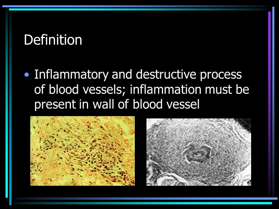 Definition Inflammatory and destructive process of blood vessels; inflammation must be present in wall of blood vessel.