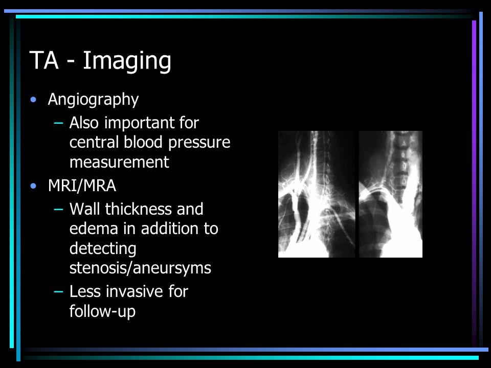 TA - Imaging Angiography