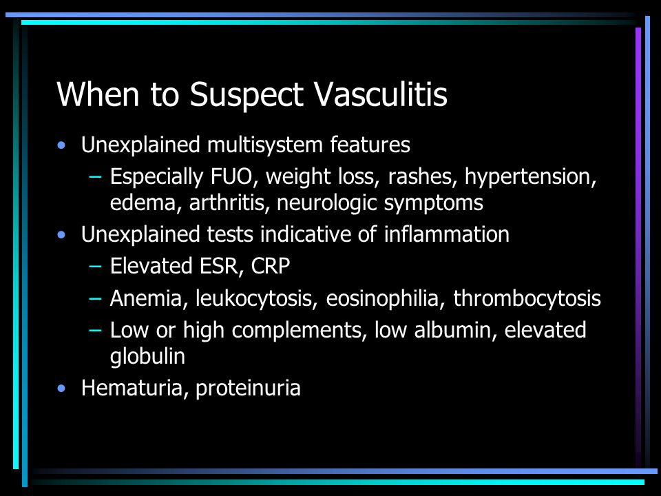 When to Suspect Vasculitis