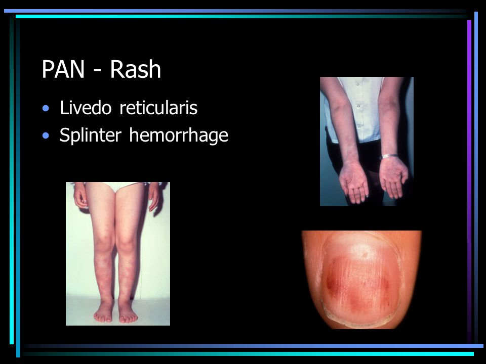 PAN - Rash Livedo reticularis Splinter hemorrhage