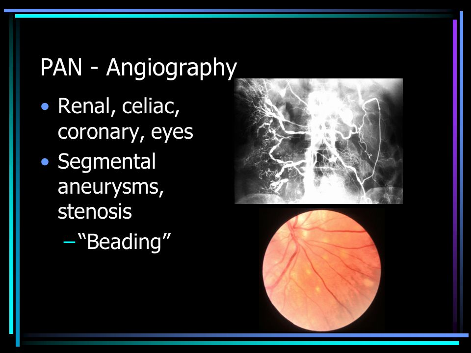 PAN - Angiography Renal, celiac, coronary, eyes