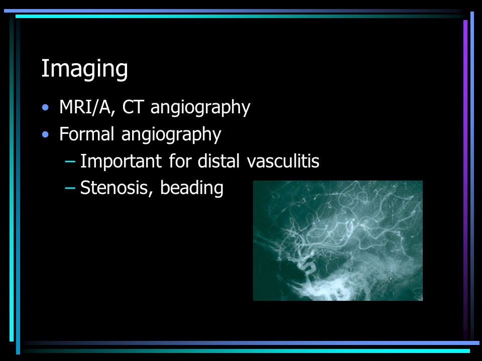 Imaging MRI/A, CT angiography Formal angiography
