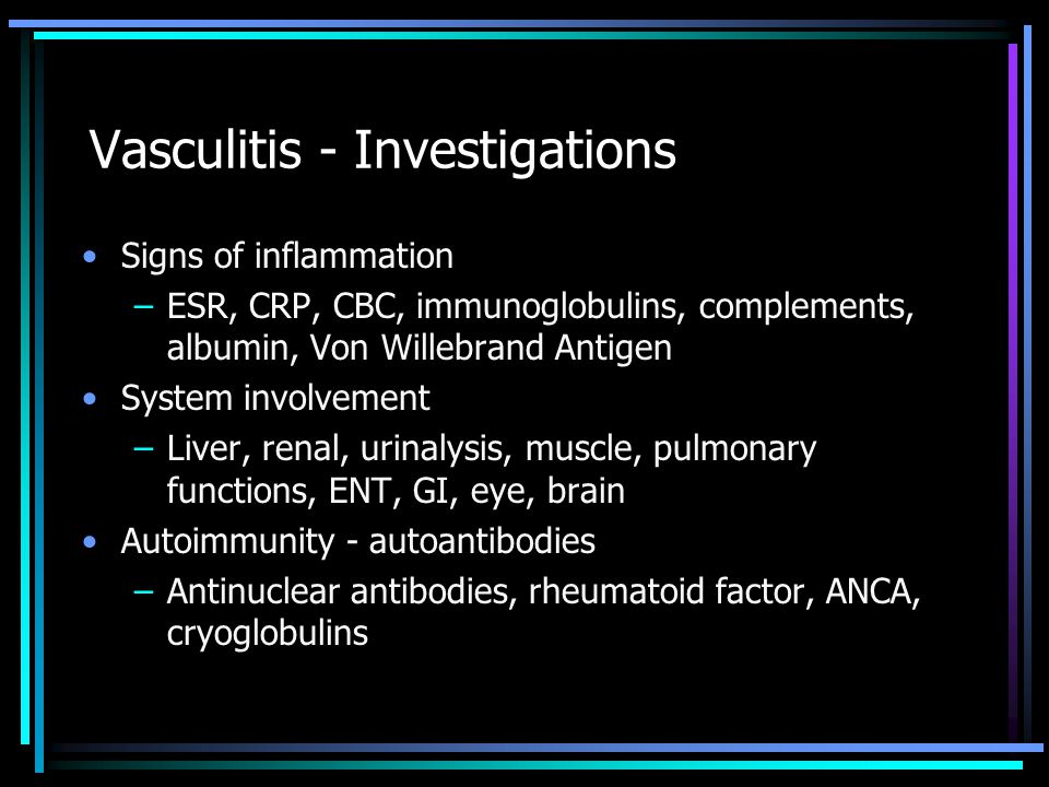 Vasculitis - Investigations