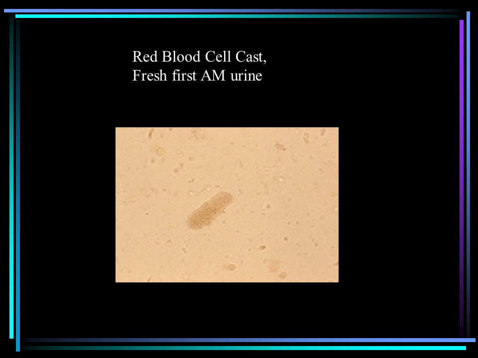 Red Blood Cell Cast, Fresh first AM urine