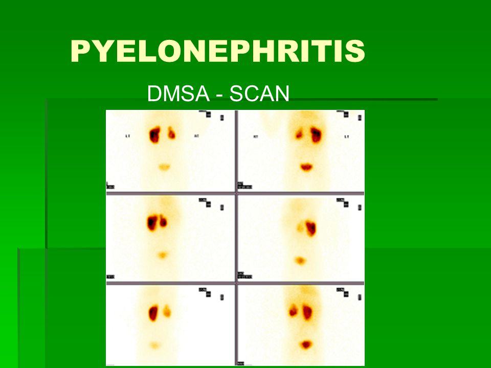 PYELONEPHRITIS DMSA - SCAN